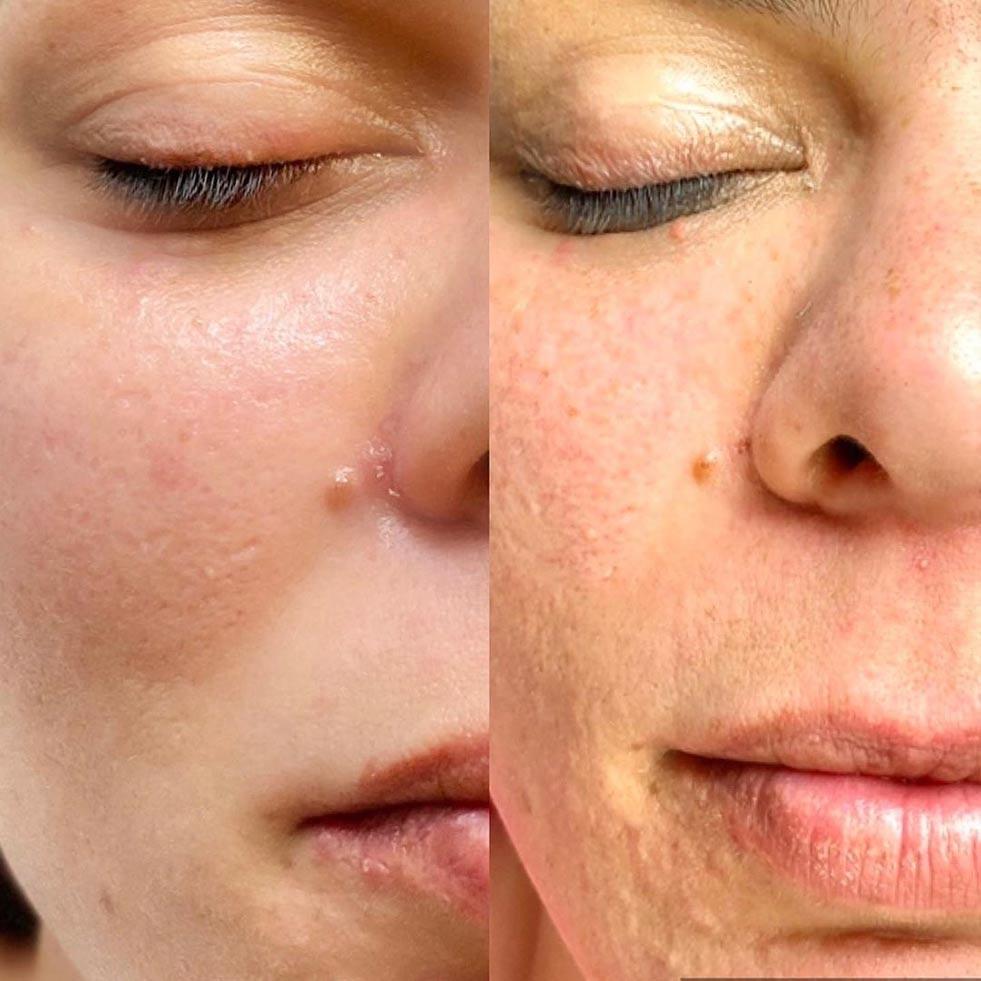 SkinPen Microneedling Behandlung: Vorher / Nachher